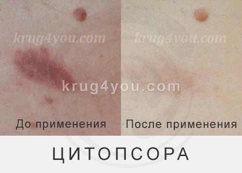 blog-citopsora