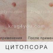 Кожа до и после применения Цитопсоры